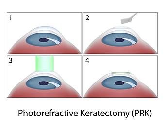 PRK Surgery Diagram